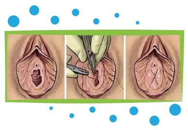 hymenoplastie avant apres