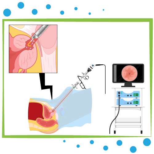 biopsie testiculaire tunisie