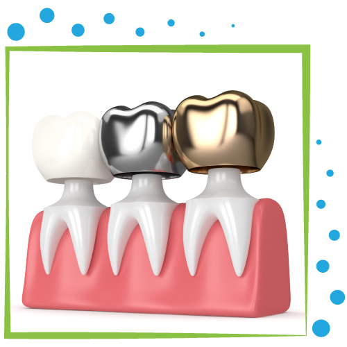 pose couronne dentaire tunisie prix
