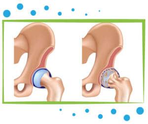 pose prothèse intermédiaire de hanche tunisie