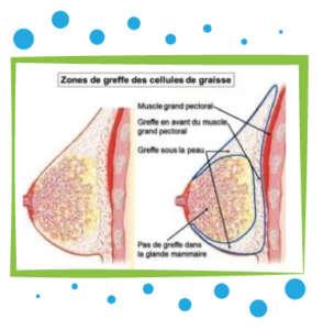 lipofilling mammaire, Augmentation mammaire par injection de graisse tunisie