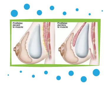 augmentation mammaire par pose d'implants en Tunisie