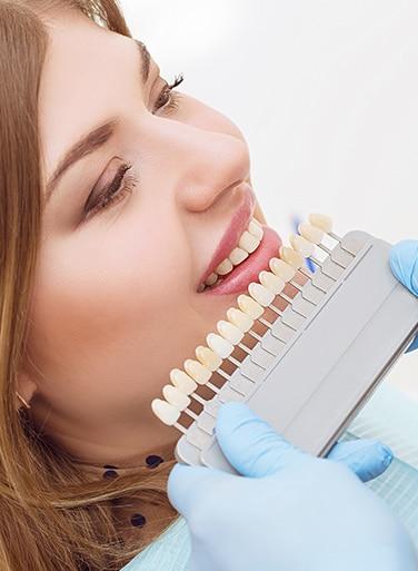 pose de facette dentaire Tunisie