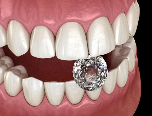 facette dentaire prix tunisie