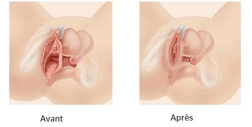 vaginoplastie tunis