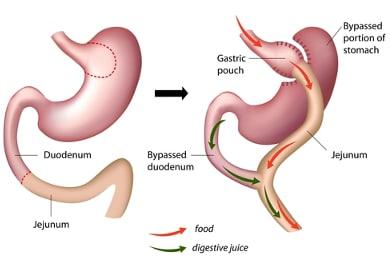 En quoi consiste le bypass gastrique?
