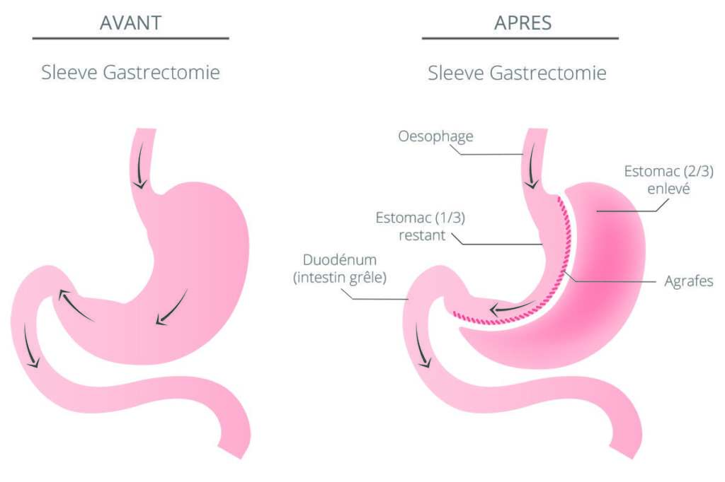 En quoi consiste la sleeve gastrique?