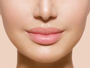 PermaLip-augmentation-des-lèvres-300x227