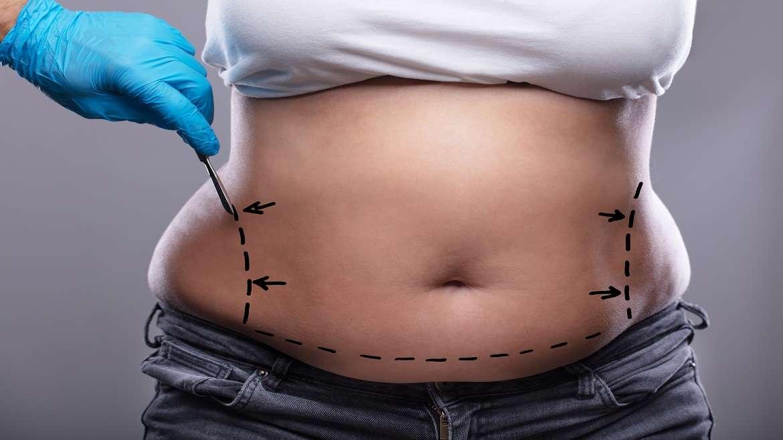 En quoi consiste l' abdominoplastie
