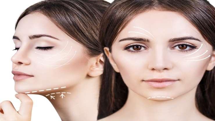 En quoi consiste le lifting du visage ?