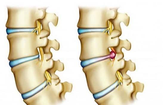 Comment diagnostiquer une hernie discale ?