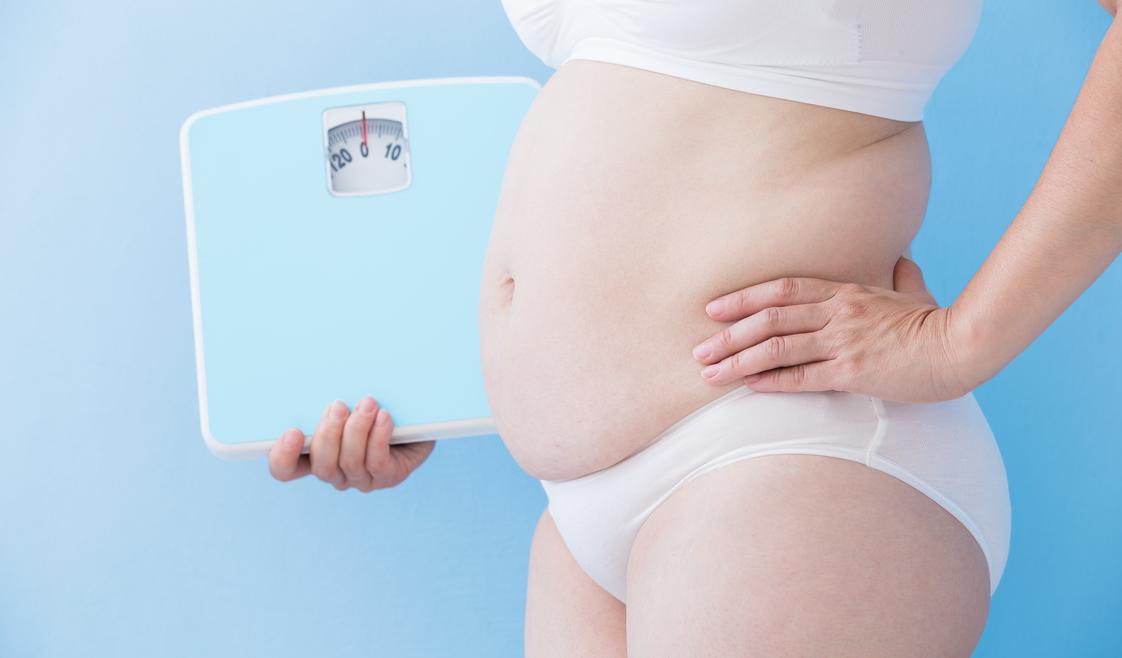En quoi consiste une sleeve gastrique et quels sont ses mécanismes ?