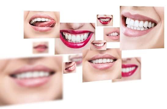 Quelle différence entre implant et facette dentaire ?