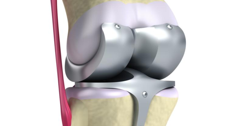 Quand une opération du genou est recommandée ?