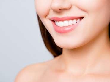 Pourquoi recourir aux facettes dentaires ?