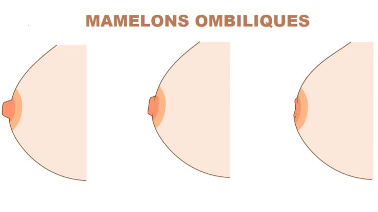 mamelon ombiliqué