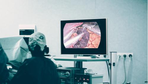 chirurgie bariatique en Tunisie