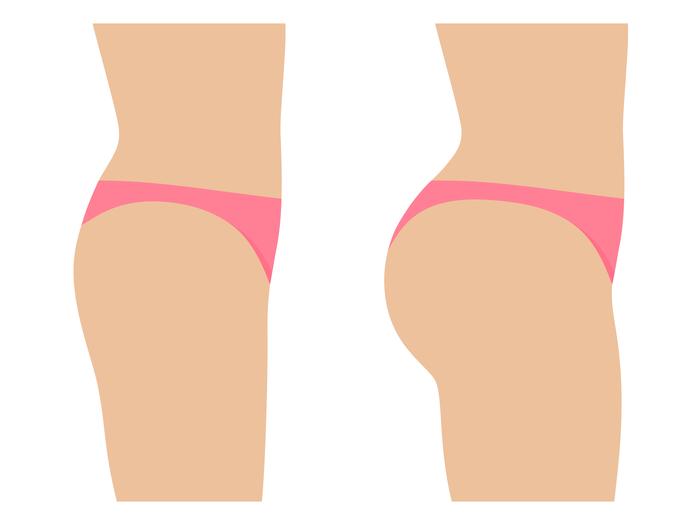 chirurgie esthétique des fesse