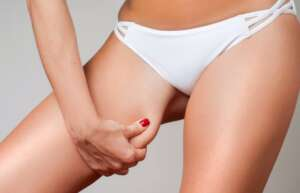 Liposuccion des hanches : Redessiner la silhouette