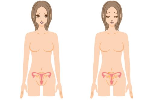 Myomectomie tunisie