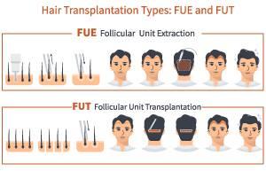 techniques greffe de cheveux FUE et FUT