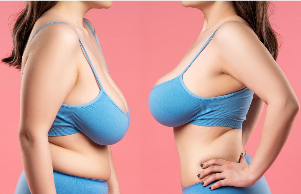 Redrapage mammaire prix : Pour redonner de la fermeté à vos seins